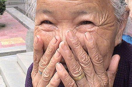Le malattie della pelle che causano la pigmentazione di pelle